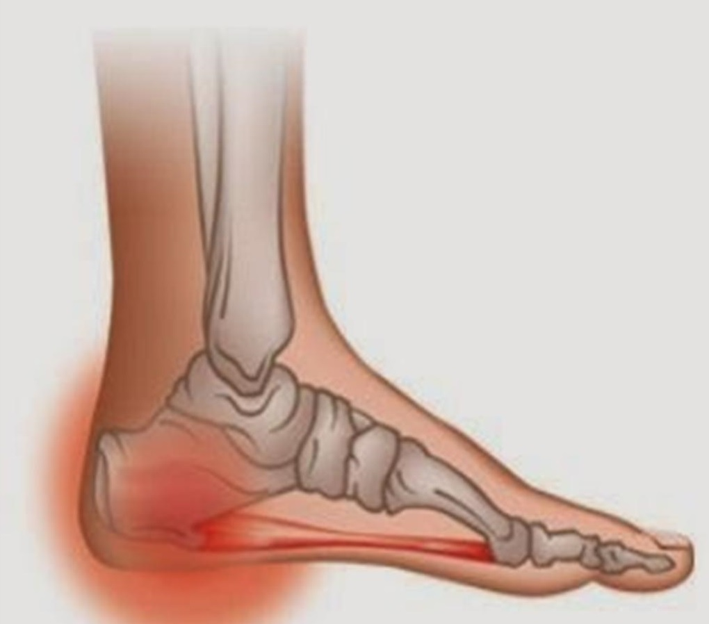 Heel pain and plantar fasciitis treatment oakville physiotherapy
