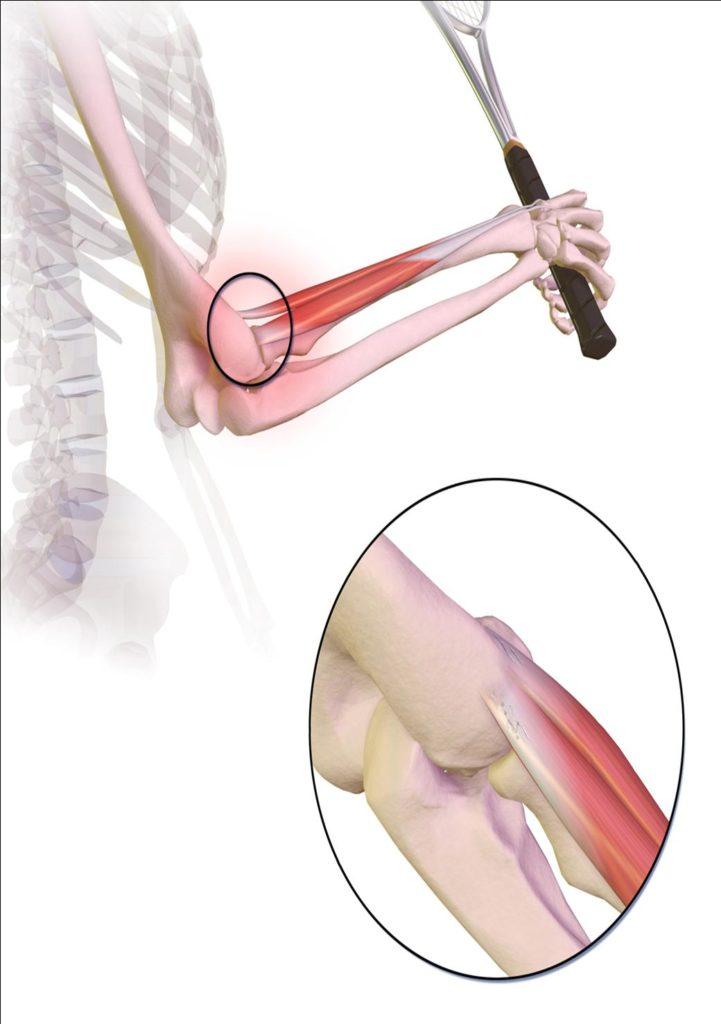 Tennis Elbow Pain and Treatment Physiotherapy Oakville