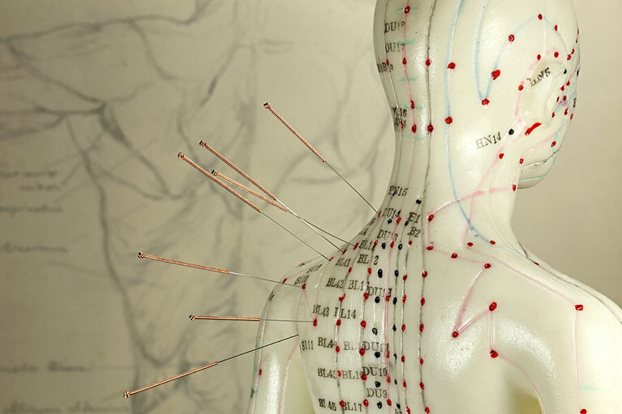 Acupuncture points from our oakville acupuncturist