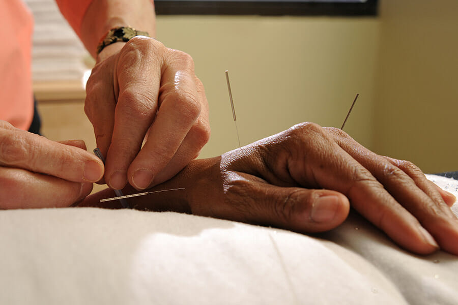 Acupuncture on hand