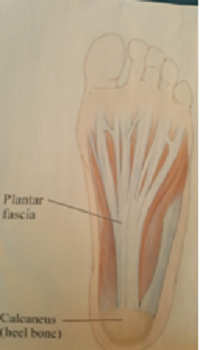 Oakville physiotherapy Plantar Fascitis treatment