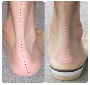 Oakville orhotics for knee pain, picture of a persons foot collapsing without orthotic and then being supported with the custom orthotic
