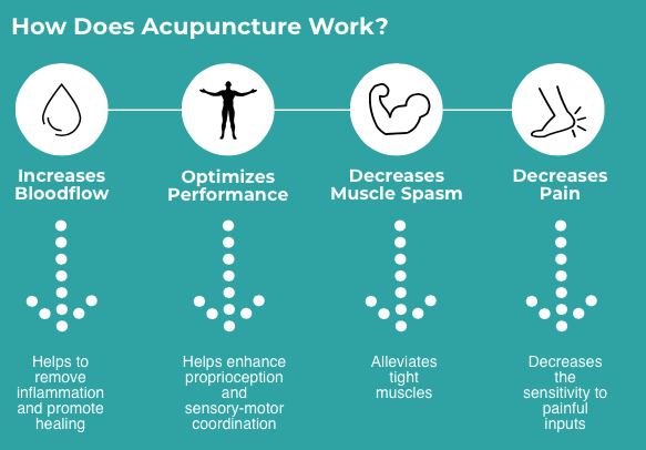 Acupuncture infographic oakville how our acupuncturist makes it work