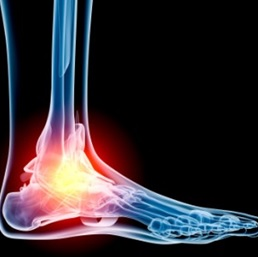 Sprained ankle pain and how your Physiotherapist grades your sprain and treatment