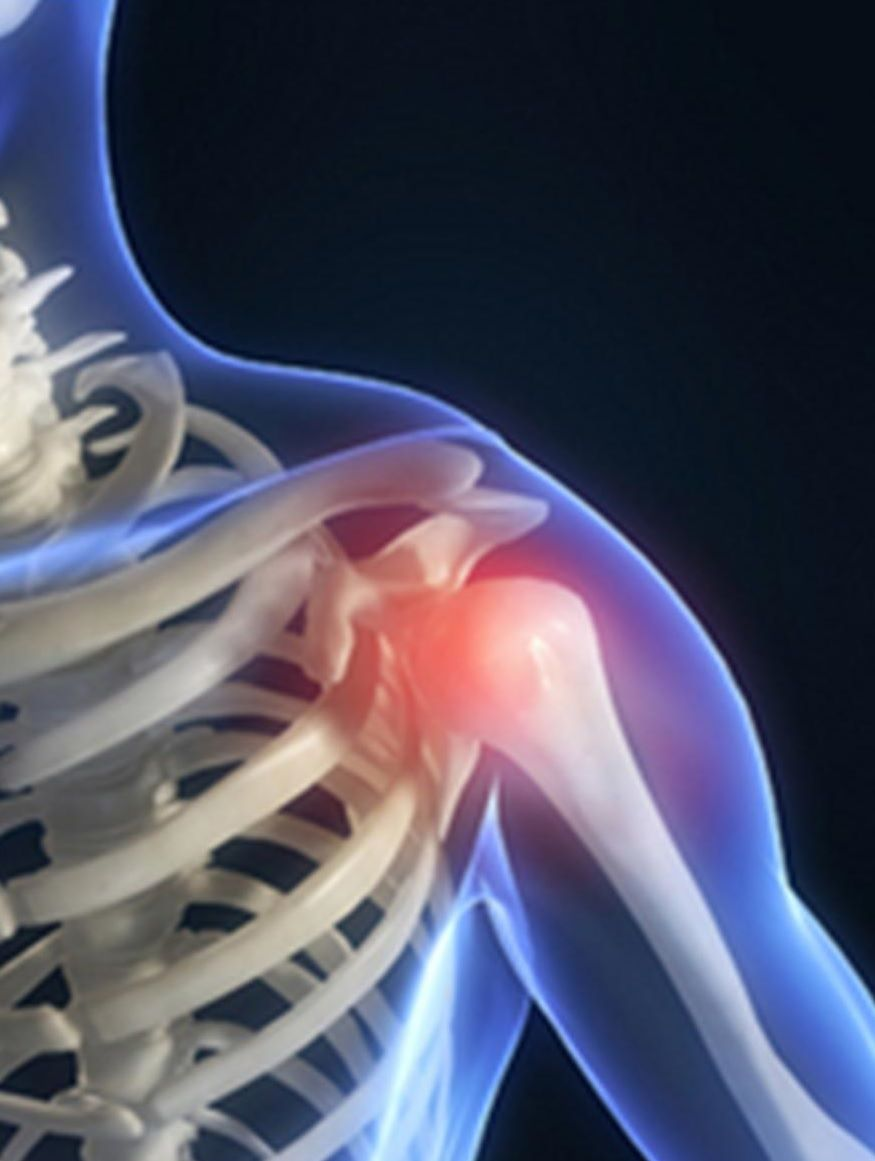 physiotherapy oakville shoulder treatment
