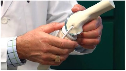 physiotherapy oakville knee replacement model