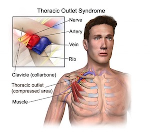 oakville physiotherapy thoracic outlet syndrome anatomy