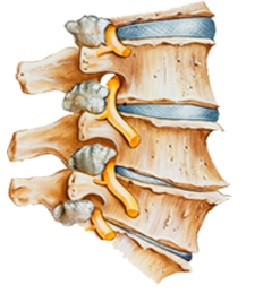 physiotherapy oakville cervical spine degeneration