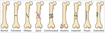 oakville physiotherapy types of fractures