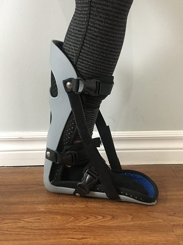 patient standing in a boot designed to treat plantar fasciitis